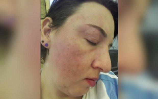 Professora denuncia ter levado soco de diretor de colégio