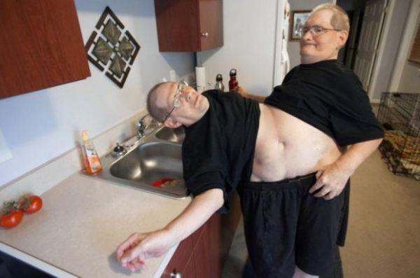 Irmãos de 62 anos esperam ser reconhecidos pelo livro dos recordes como os mais antigos gêmeos siameses do mundo
