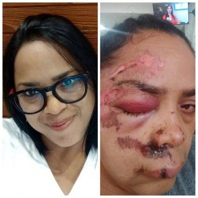 Mulher tem o rosto arrastado no asfalto