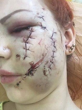 Mulher tem rosto rasgado com pedaço de vidro em briga