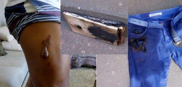 Celular explode no bolso de calça e queima perna de enfermeiro