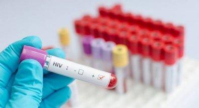 Tratamento brasileiro elimina vírus HIV